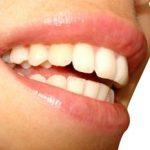 Les médicaments qui abîment les dents